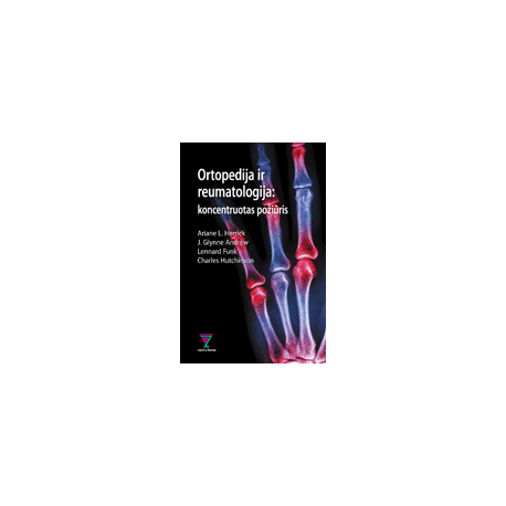 Ortopedija ir reumatologija: koncentruotas požiūris